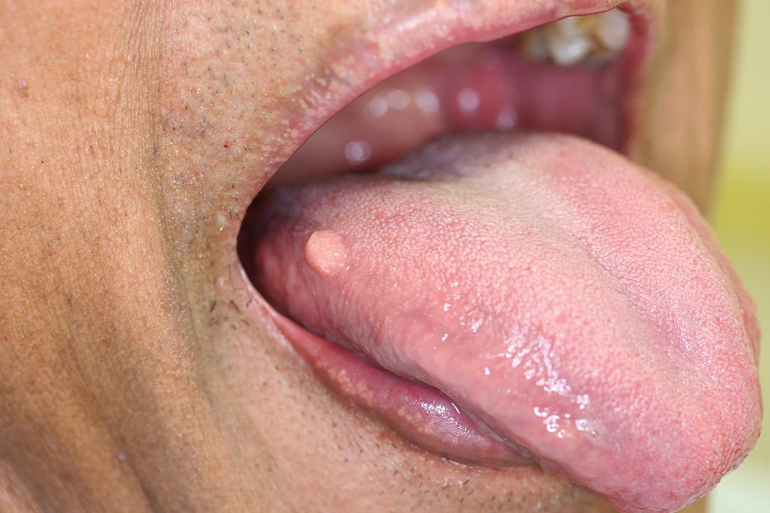 hpv tünetek a nőknél