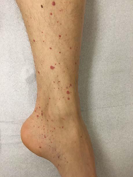 rode stipjes op benen