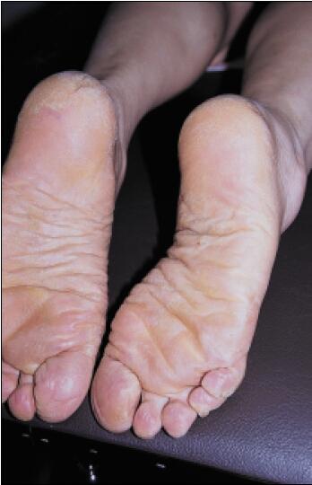 eczeem voeten