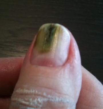 Een Groene Nagel. Wat Is Uw Diagnose? | Huisarts U0026 Wetenschap
