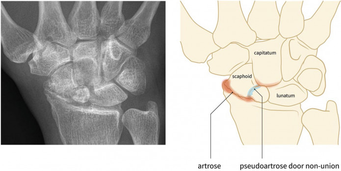 Scaphoid nonunion advanced collapse (SNAC)