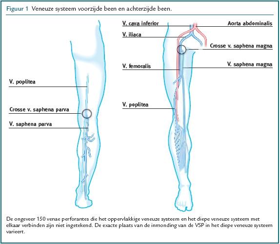 vene reticulare varice vindecarea varicelor